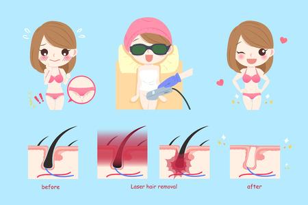 cute cartoon woman with laser bikini line hair concept