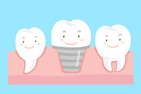steel. milk: tooth with implant concept on the blue background
