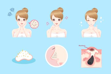 Cartoon Schönheit Frau mit Akne-Problem in der Nase vor und nach Standard-Bild - 82349949