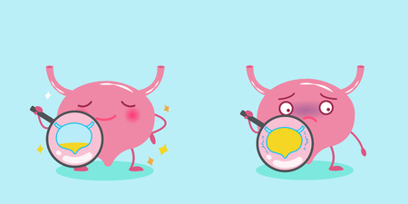 Cute cartoon bladder with health concept on the blue background Çizim