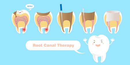tand met wortelkanaaltherapie op de blauwe achtergrond