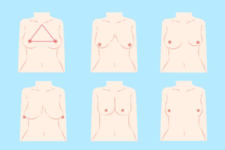 青の背景に別の胸の形を漫画します。