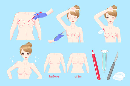 woman with breast augmentation before and after on the blue background Illustration