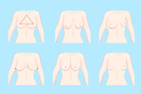 unterschiedliche Brustform der Karikatur auf dem blauen Hintergrund
