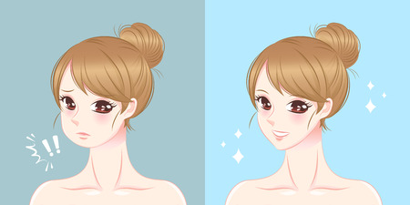 Woman with tip chin before and after illustration. Illustration