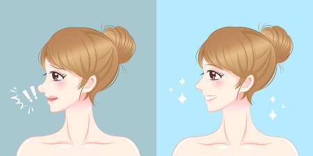 Woman nose before and after surgery.
