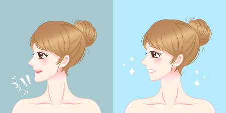 Woman with thick chin before and after on the blue illustration. Ilustracja