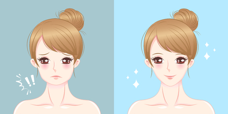 Woman with thick chin before and after on the blue illustration. 矢量图像