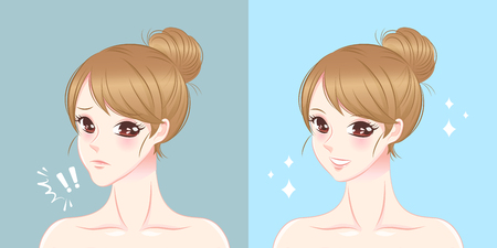 Woman with thick chin before and after illustration.