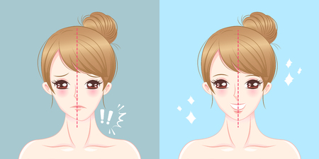 Woman asymmetry chin before and after on blue illustration. Illustration