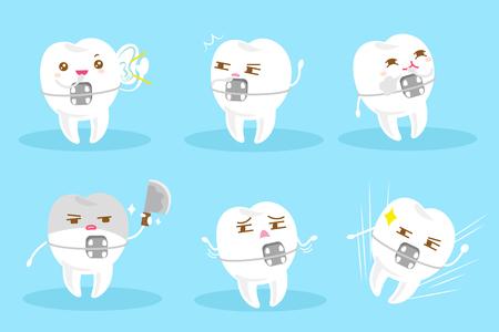 tand slijtage bretels met verschillende emotie op de blauwe achtergrond