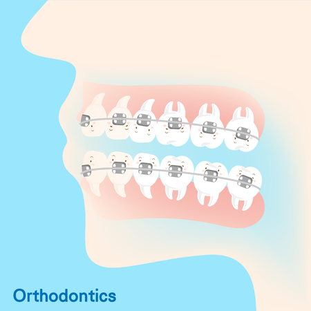cute cartoon tooth brace concept on the blue background Illustration