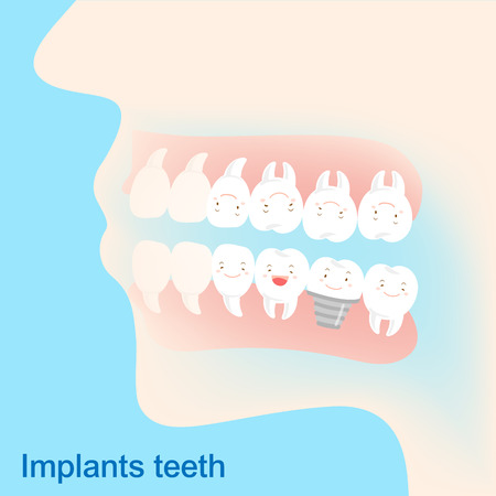 Tooth with implant concept on the blue background.