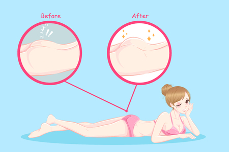 A beauty woman with butt implant before and after