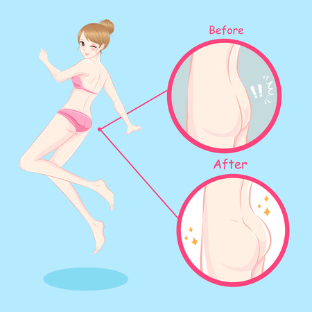 Before and after illustration of woman with butt implant Illustration