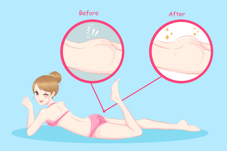 beauty woman with butt implant before and after Illustration