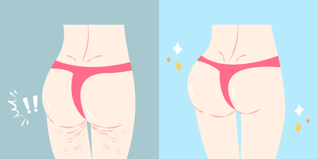 woman buttocks before and after cellulite on the blue background