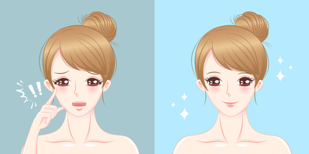 Woman with drooping eye before and after
