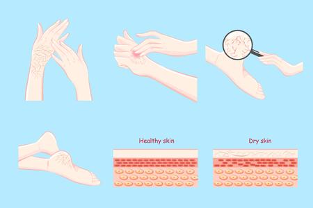 En bonne santé avec le concept de peau sèche sur le fond bleu