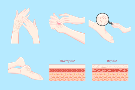 Healthy with dry skin concept on the blue background