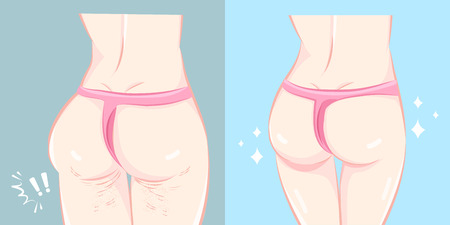 Buttocks before and after cellulite on the blue illustration.