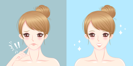 Woman with mouth wrinkles problem on the blue illustration. Illustration