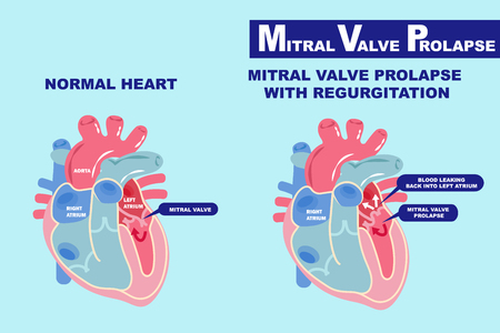 heart with mitral valve prolapse on the blue background