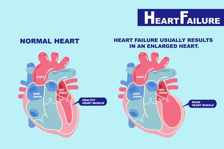 cartoon heart failure concept on the green background