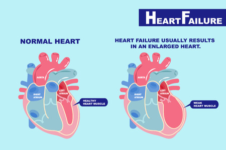 cartoon heart failure concept on the green background
