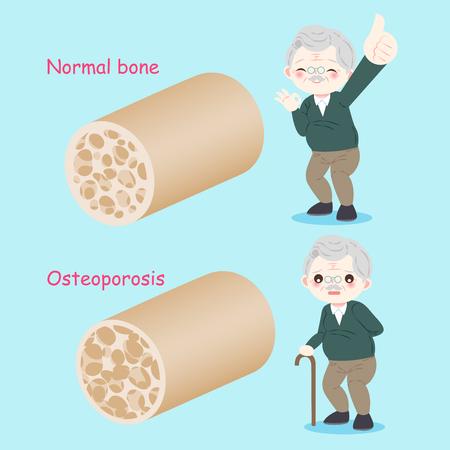oude man met osteoporose op de blauwe achtergrond