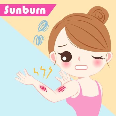 Cute cartoon woman with sunburn problem on blue background