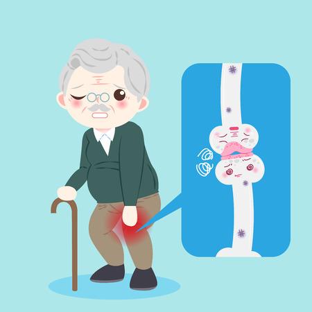 Alter Mann mit Osteoporoseproblem auf dem blauen Hintergrund Vektorgrafik