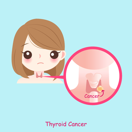 woman with thyroid cancer on the blue background