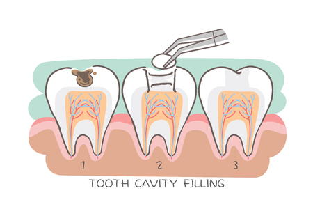 tooth cavity filling on the white background