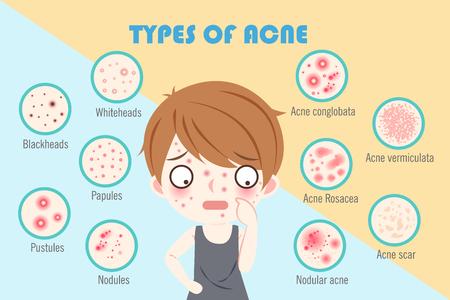 jongen met soorten acne op de blauwe achtergrond
