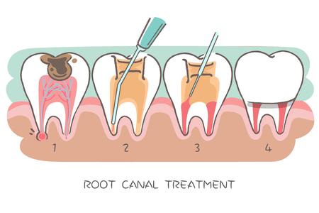 dent avec traitement de canal radiculaire sur le fond hwite