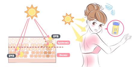 cute cartoon woman with sunburn problem on white background 일러스트