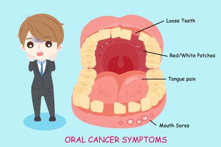 Hombre con síntomas de cáncer oral en el fondo azul.