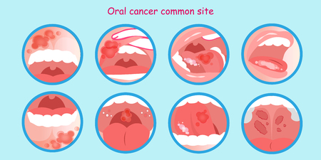 oral cancer commom site on the blue background Çizim