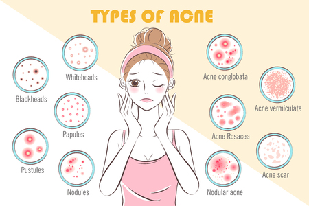 girl with types of acne on the yellow background Standard-Bild - 104144992