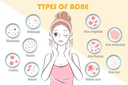 Mädchen mit Arten von Akne auf dem gelben Hintergrund