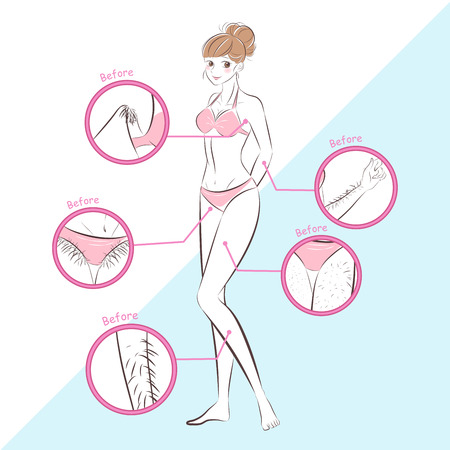 woman with hair problem before and after Illustration