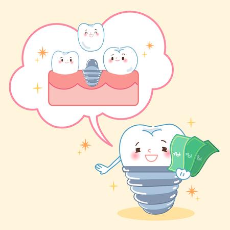 Zahn mit Implantatkonzept auf gelbem Hintergrund