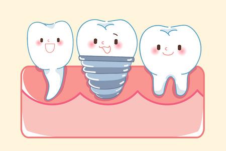 concept de dent d'implant de dessin animé mignon sur fond jaune