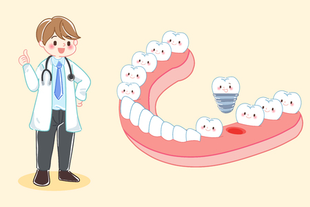 cute cartoon dentist with tooth and implant Vector Illustration