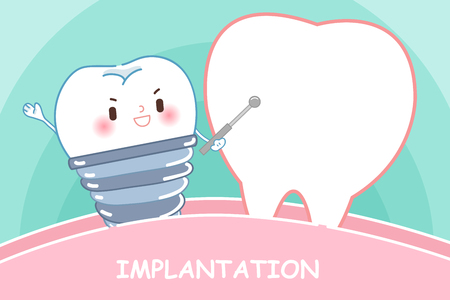 tooth with implanttion concept on the green background