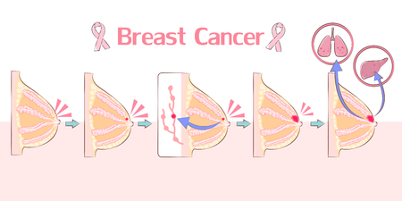 cartoon breast cancer on the white background Иллюстрация
