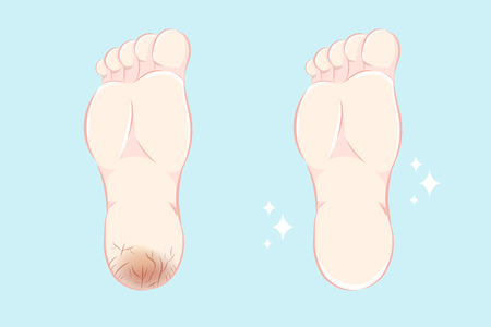 cartoon feet with dry skin before and after treatment