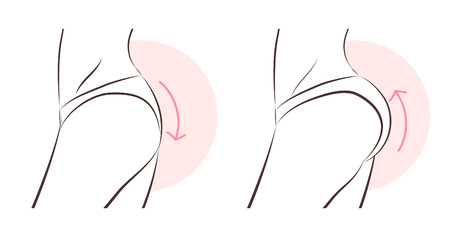 beauty woman with butt implant before and after
