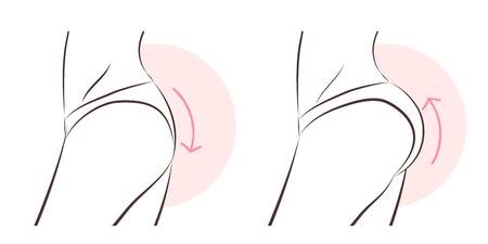 femme de beauté avec implant fessier avant et après Vecteurs